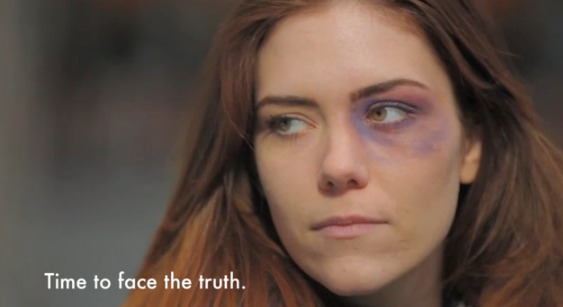 Makeovers that give women fake bruises raise awareness of domestic violence